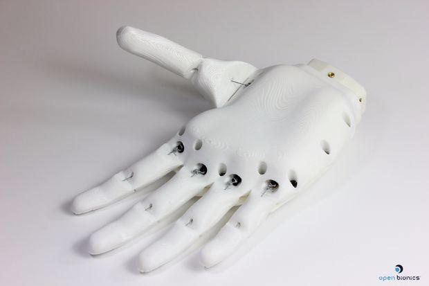 Open Bionics 3D printed prosthetic hand